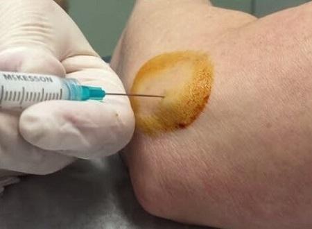 تزریق بوتولینوم توکسین تیپ A
