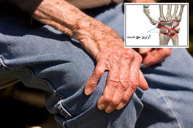 artroz1
